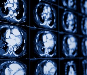 CT scan and cancer: what are the risks?